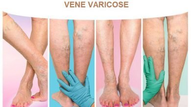 Photo of Vene Varicose
