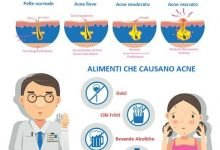Photo of Alimenti che Causano Acne